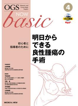 OGS NOW basic Obstetric and Gynecologic Surgery 4 明日からできる良性腫瘍の手術